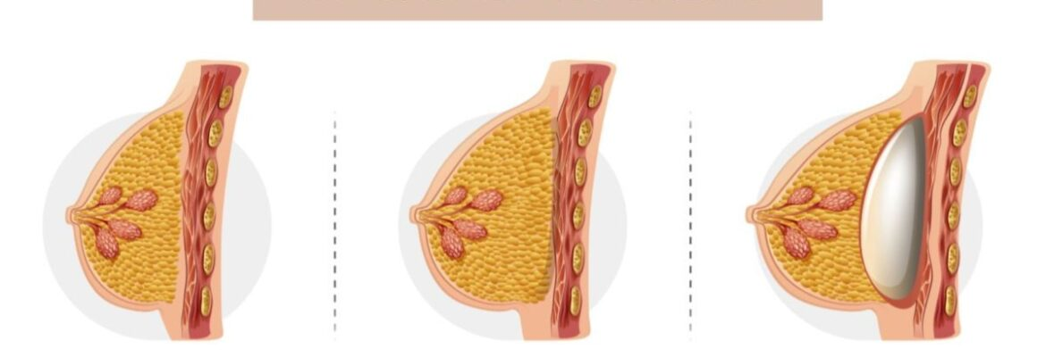 Breast Fat Transfer Surgery Cost in Nairobi- Find the Best Surgeons, Reviews and  Book Appointment
